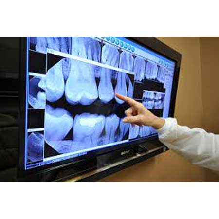 Sable DDS Xray